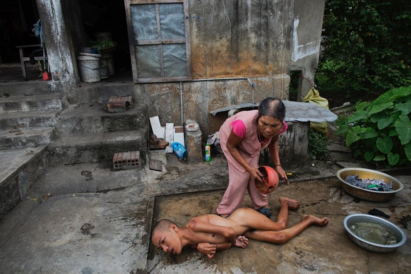 The Vietnam War is not History for Victims of Agent Orange