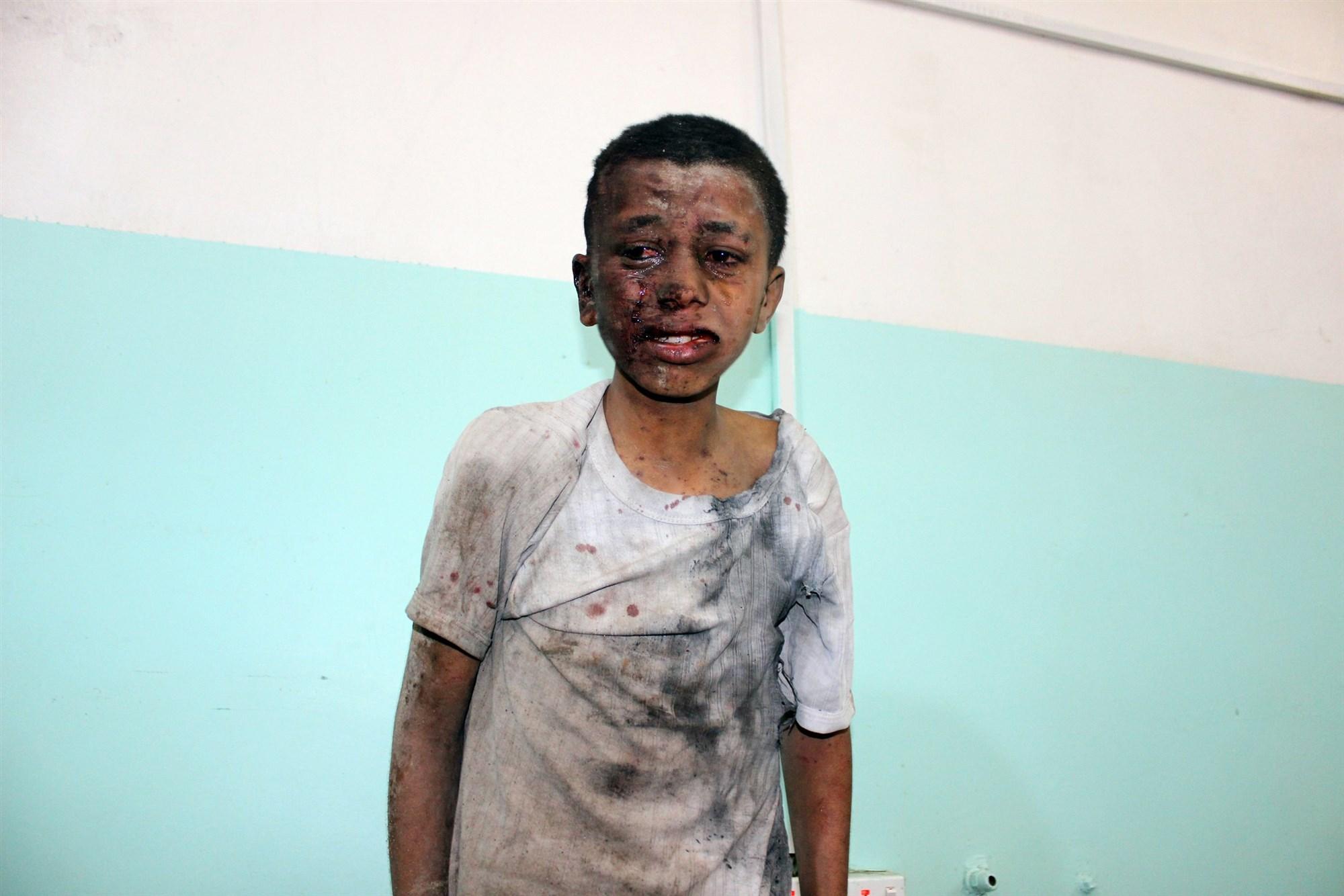 Khashoggi vs. 50,000 Slaughtered Yemeni Children: Europe has no Morals, no Ethics no Nothing